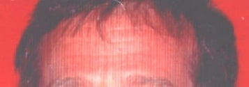 the-Forehead